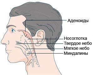 аденоиды миндалины