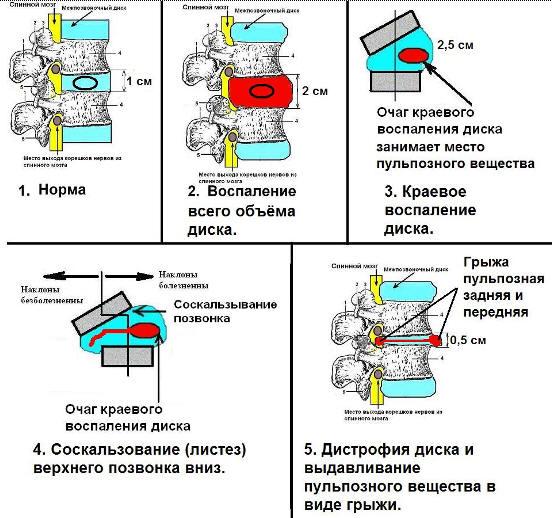 развитие межпозвоночной грыжи