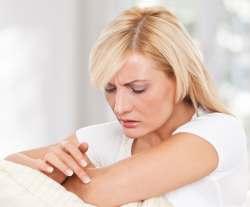 лечение экземы симптомы